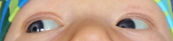 har alla nyfödda blå ögon